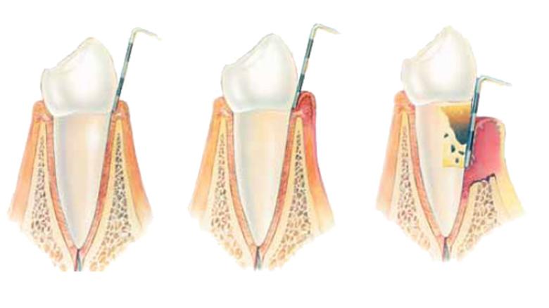DİŞETİTEDAVİLERİ (Periodontoloji)